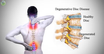 Degenerative-Disk-Disease
