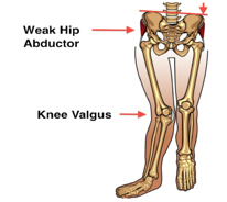 Hip-Adductor-Weakness
