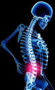 chiropractic, physical therapy, physiotherapy, Adolf and Kalkstein, low back pain, spine, rehabilitation