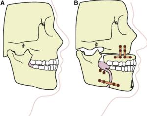 Illustration of maxillomandibular advancement