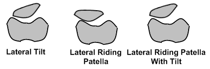 Lateral_riding